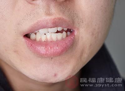 缓解溃疡,改善牙龈