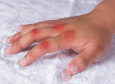 凡是引起高尿酸血癥的疾病均可引起痛風的發生,如腎小球過濾障礙、腎小管重吸收以及長期尿酸鹽堆積結晶等使尿酸排泄出現障礙,而引起高尿酸血癥,久而久之導致痛風的發生