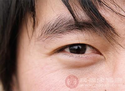 如果不想有黑眼圈就不要熬夜哦,保持充足的睡眠和休息
