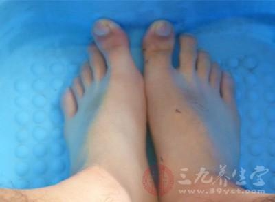 避免用烫水洗脚