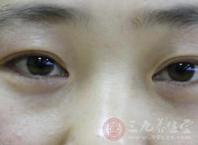70%的患者由此引起,但有1/4的患者可能有威胁视力的病变