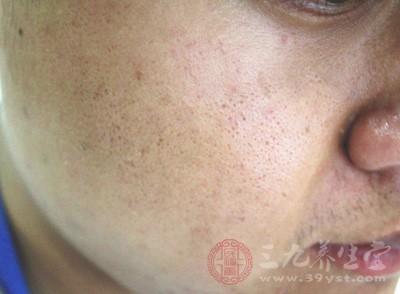出血点的症状比较特殊,因为它高出皮肤表面
