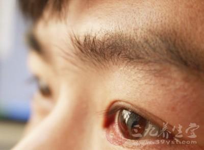 眼睛里进了东西怎么弄出来 这样做保护眼睛