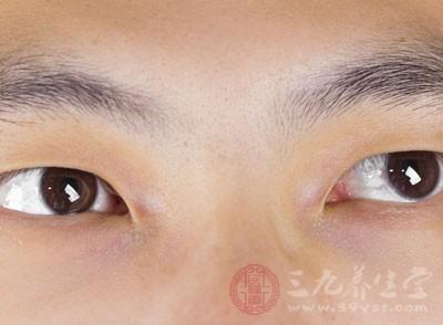 什么是青光眼 青光眼早期会出现的症状