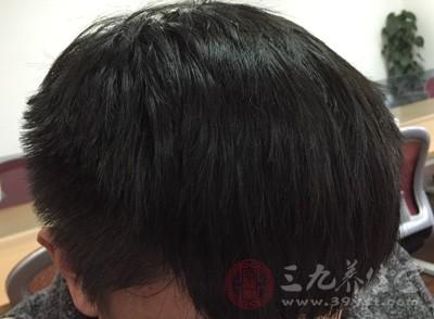 头皮屑很大块是怎么回事啊 九大方法防止头屑