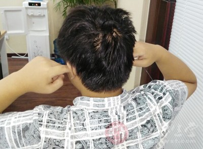 不少人会担心副耳与神经是联系在一起的