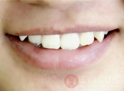 洗牙能美白牙齿吗 洗牙究竟对牙齿好不好