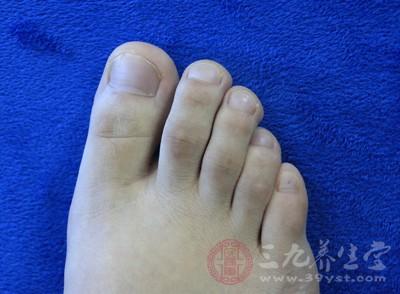 脚趾甲发黑是怎么造成的 背后原因并不简单