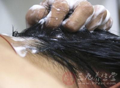 头皮屑多是什么原因男图片