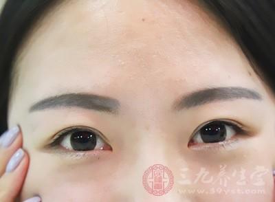 造成女性黑眼圈的原因有哪些 该如何进行调理