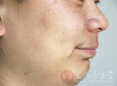 年龄增加,血液循环逐渐不顺畅,皮肤的皮下组织脂肪层也因而容易松弛、缺乏弹性,毛孔自然也越加扩大