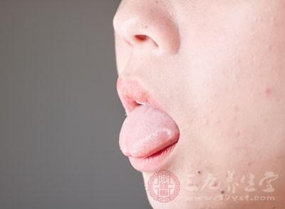 舌头发黄同样是身体不健康的表现,那么舌头发黄表示身体出现了哪些问题呢