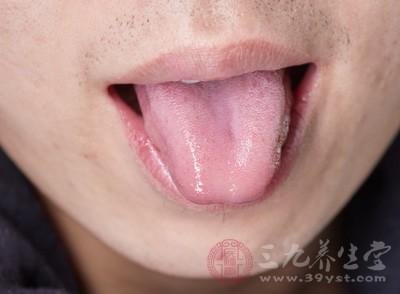 从舌头看健康