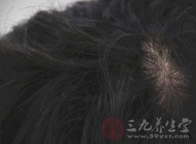 头发掉得多 可能是身体缺少这些营养物质