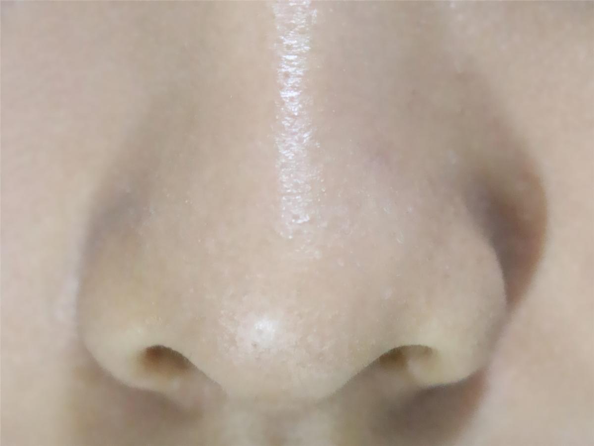 鼻子美女之护士特写美女五官透明图片
