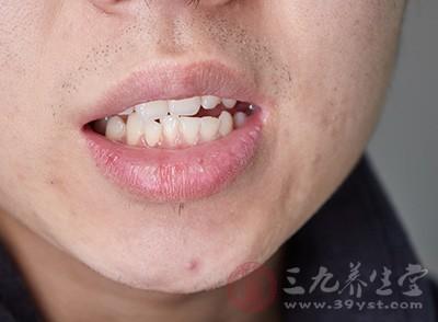 其边缘不整齐而呈锋利状,常会刺激牙龈发生溃疡而引起出血