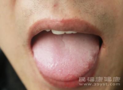 这样舌头长期撞到牙齿