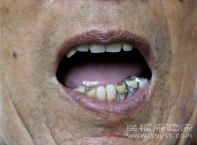 吃什么都塞牙 齿缝还很臭该怎么办