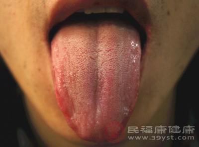 怎么检测自己有没有口臭 口臭又该如何缓解
