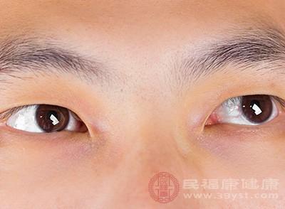 眼里有红血丝是怎么回事 可能是这些疾病导致