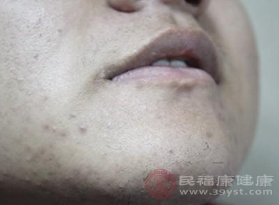 它导致痤疮长在额头和下巴居多,常年消去了又长出来