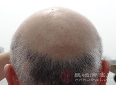 白发增多可能是这些原因 不能忽视