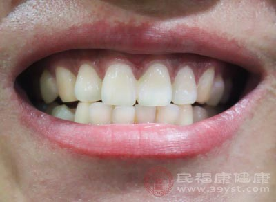 刷牙的粗暴方式导致牙颈部机械磨耗从而导致牙龈损伤、牙龈萎缩