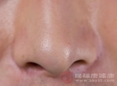 鼻子发干怎么办 多喝水竟然还有这效果