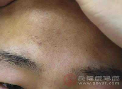 脸上长痘痘怎么办 怎样预防皮肤长痘痘