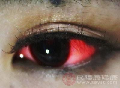 红眼病的症状 这样做有效治疗红眼病
