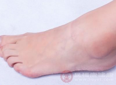 脚后跟干裂起硬皮怎么办