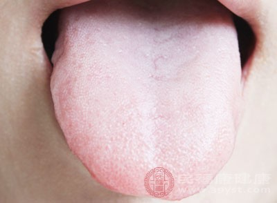 舌头上有这种表现 说明你脾虚