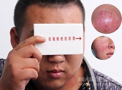 痤疮一般都是发生在人的面部