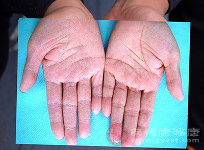 手指脱皮的原因 如何预防手指脱皮