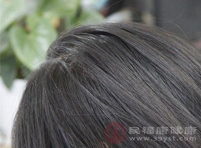 头皮屑多是什么原因 洗发水过敏竟有这个后果