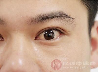 割双眼皮要注意什么