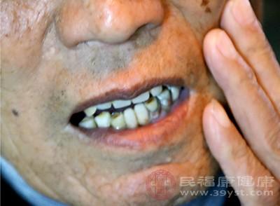 传统牙套和自锁牙套_正畸牙齿的年龄限制
