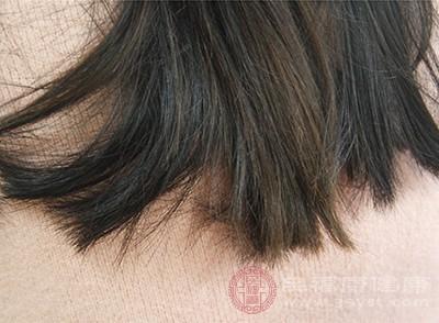 植发后要留意做好头发头皮的护理