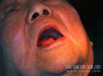 牙结石的危害 去除牙结石需要这样做