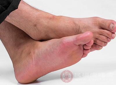 脚臭又叫香港脚菌,其中有一种白癣菌的真菌,它就是引起脚臭的罪魁祸首