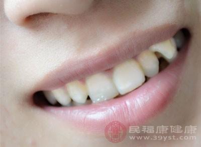 牙齿矫正的期间做好口腔卫生情况