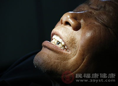 烤瓷牙的危害 烤瓷牙的寿命有多久