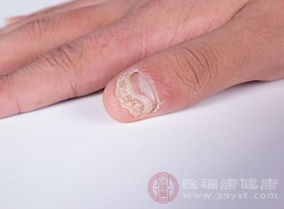 多数人会患有灰指甲都是因为细菌剧感染的原因