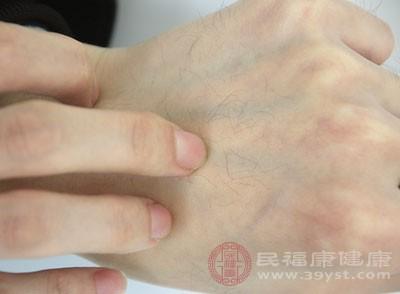 皮膚過敏怎么辦 這樣做幫你緩解皮膚瘙癢