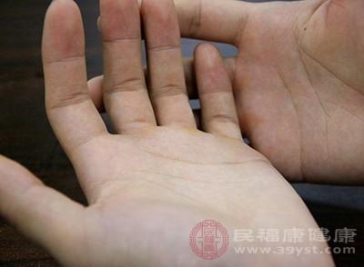手腕腱鞘炎的症状 预防的方法要知道