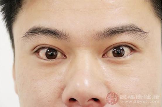 沙眼患者有哪些癥狀