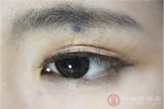 眼部去眼袋的整形手术有哪些