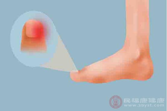 甲溝炎一般是由于周圍皮膚發生病變所引起的炎癥反應