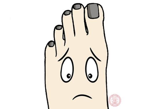 灰指甲也被俗稱為甲癬,它是病菌在侵犯到甲板或是甲床所發生的疾病