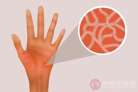 大部分蕁麻疹患者都需要主動排查過敏原